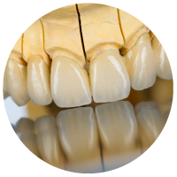 image-340218-periodontologia2.png