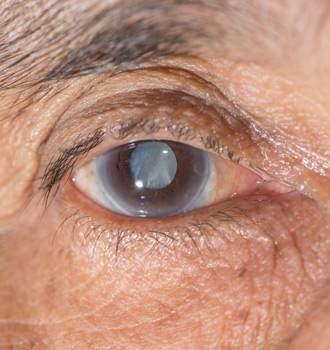 image-155106-cataract.jpg?1446632507829